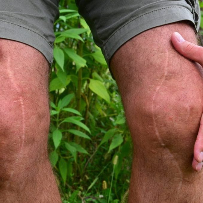 Post surgery scars, many years after knee reconstruction surgery